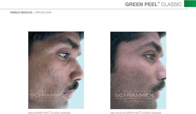 Dr. Schrammek Green Peel Maquillage Pro Beauty Houston