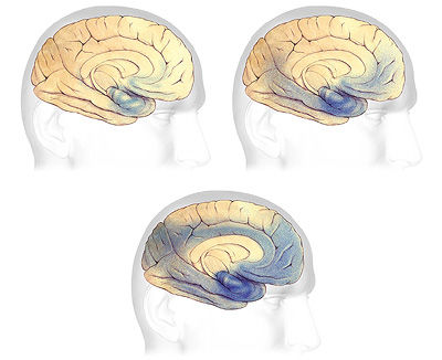 alzheimers-plaques-tangles-progression-i