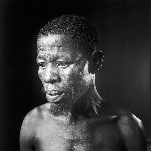 Lepromatous Leprosy