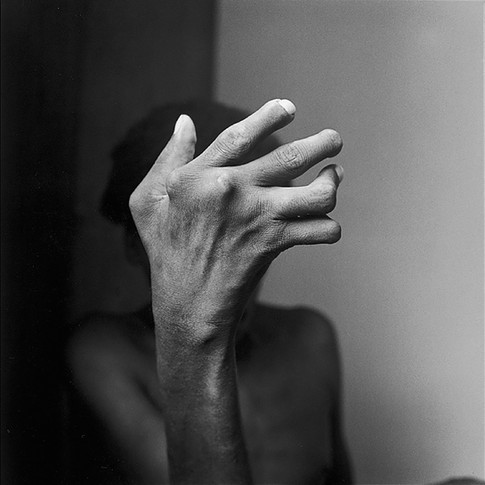 Rheumatoid Arthritis Hand