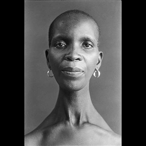 Neck Muscle Atrophy in Ndebele Woman