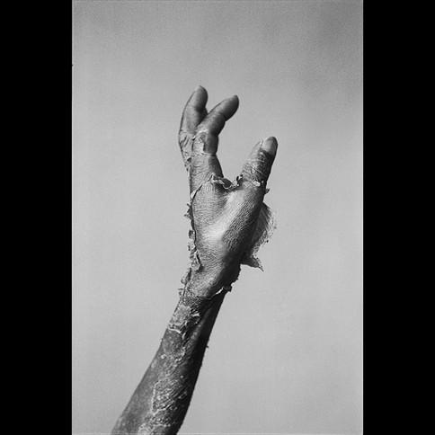 Pellagra Dermatitis