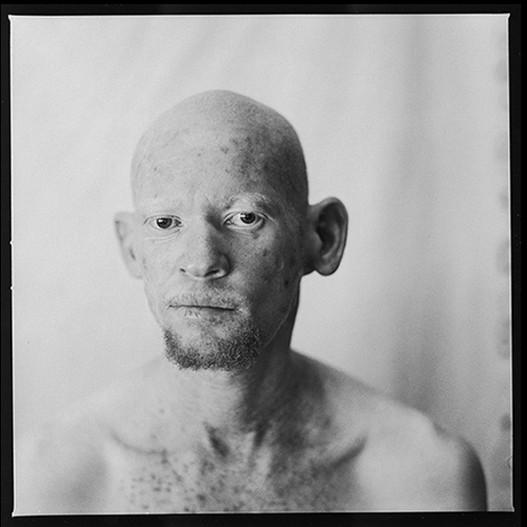 Miguel Ribeiro Photography-Medical Photos