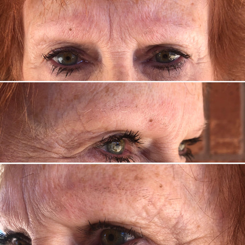 Before Microblading and Microshading