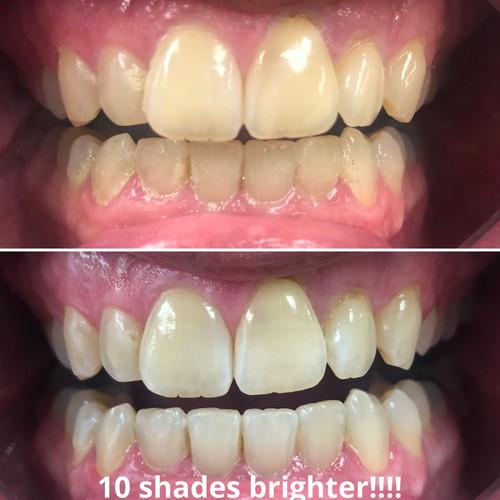 10 shades brighter