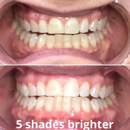 5 shades brighter