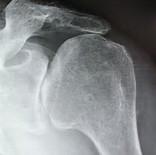 Décodage de l'épaule (pistes)
