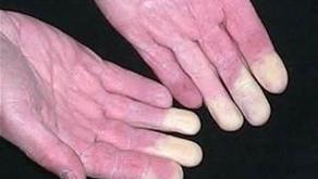 Décodage de la maladie de Raynaud (pistes)