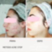 prima e dopo acne stop viva benessere.jp