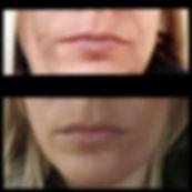 prima e dopo metodo acne stop meri.jpg