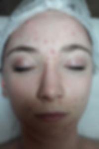 giulia viso prma trattamento acne stop viva benessere