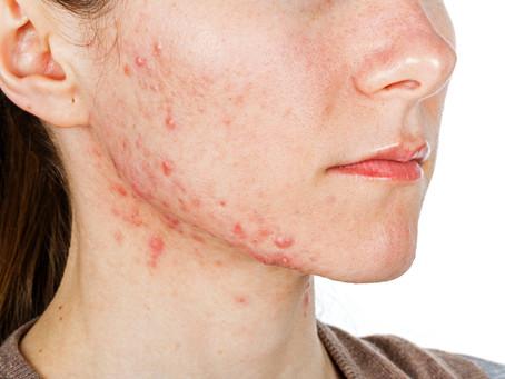 Che cos'è l'acne