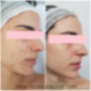 Acne Stop Laura Post 2 (FILEminimizer).p