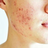 Close up of man with problematic skin an