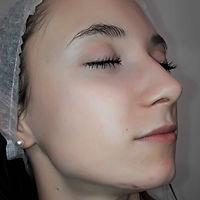 giulia viso post trattamento acne stop viva benessere