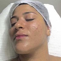 vis barbara dopo trattamento acne stop viva benessere