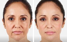 Rejuvenecimiento facial.jpg