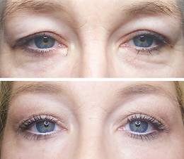 Fibroblast eye lids.png