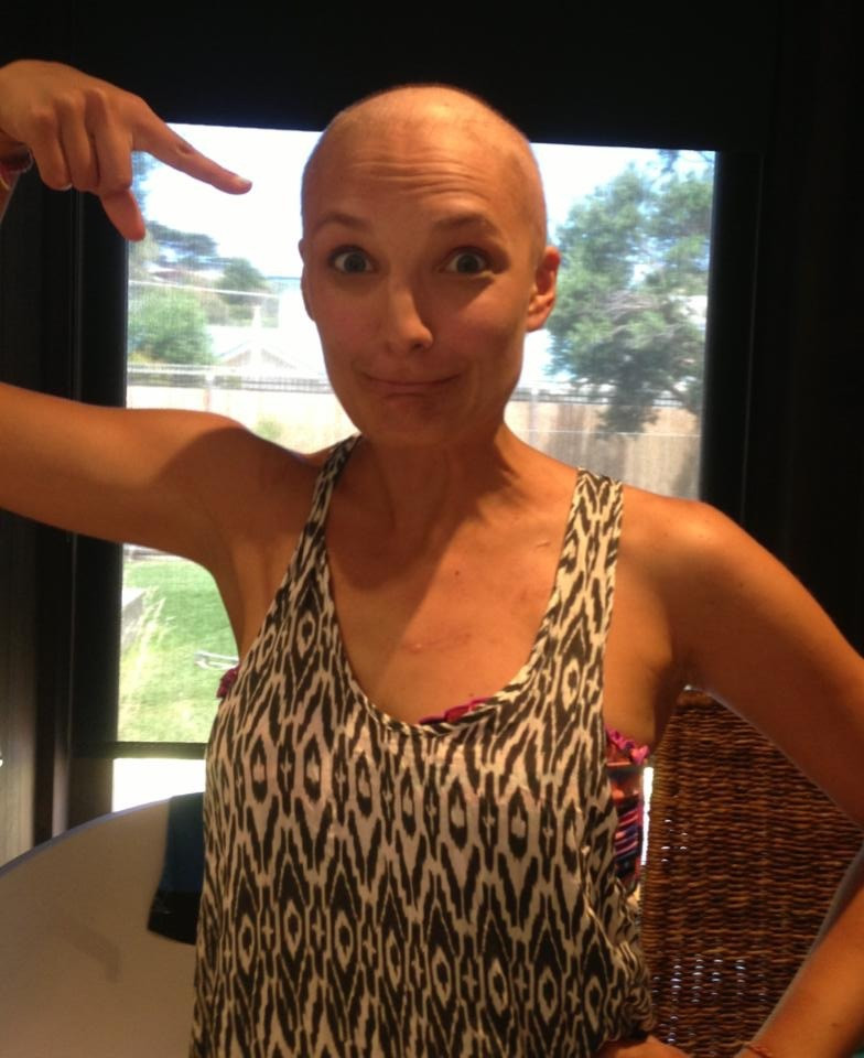Emily Somers bald cancer warrior