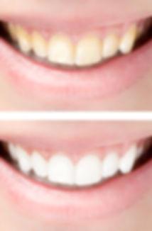 Peeling à Lyon : Centre Expert en soins pour les peaux à problèmes, acné, cicatrices, taches, rides, peaux abimées, visage et corpsPeeling Lyon, Peeling Chimique,  Peeling TCA, Peeling Glycolqiue, Peeling Doux;Traitement Des Rides Lyon sans injection.Blanchiment des dents Lyon:Microdermabrasion Lyon