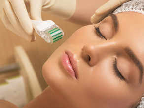 microneedling, peeling acide hyaluronique