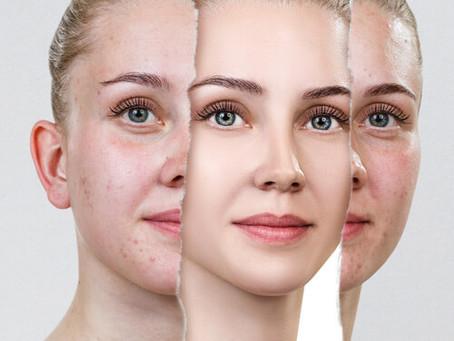 spécialiste de l'acné à Lyon