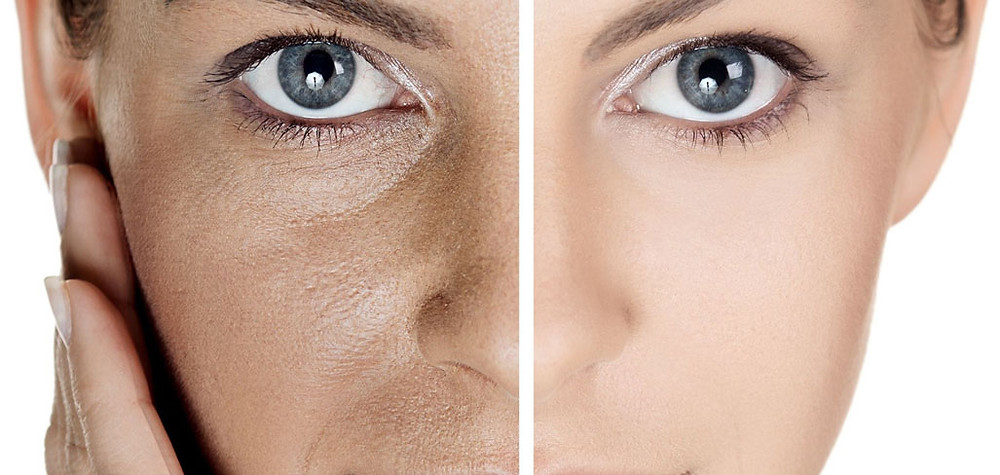 traitement des pores dilatés par peeling