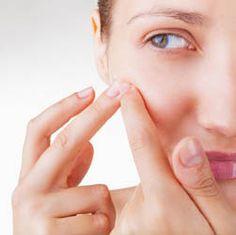 Comment faire disparaître les cicatrices d'acné Lyon ?