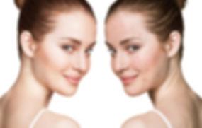 Acné traitement lyon - Acné Adulte - traitement acné sévère les ateliers pee