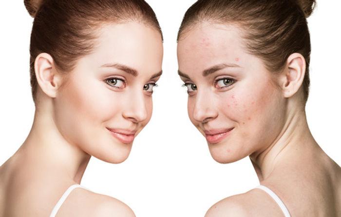 Acné traitement lyon -peeling acné et peeling cicatrices acne