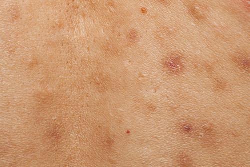 Taches Brunes Cicatrices d'Acné Malasma/Les Ateliers Peeling Lyon