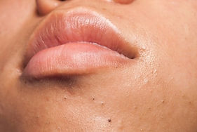 Peeling Lyon : peeling soins visage : moyen, chimique, superficiel - Les Ateliers Peeling Lyon