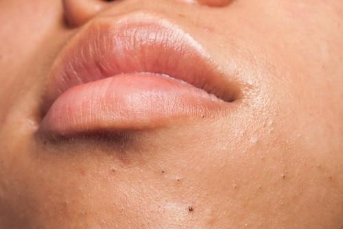 Acné-Points-Noirs traitement par peeling lyon