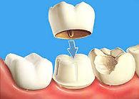 коронки на зубы елизаровская невский район спб