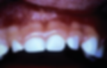 стрип коронки на зубы для детей