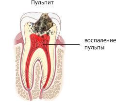 стоматология классдент спб елизаровская
