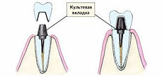 культевые вкладки на зубы елизаровская невский район спб