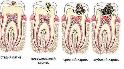 лечение зубов здоровье елизаровская