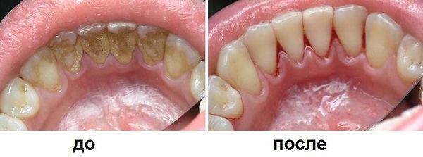 зубы чистка снятие налета СПб