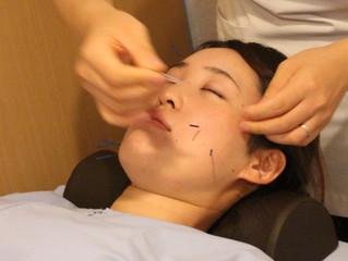美容鍼灸について①