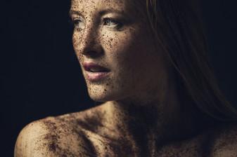 Kali Kushner und ihr Mut mit Akne