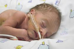 Premature birth after abortion