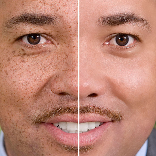Freckles Removal Before-After-S.jpg