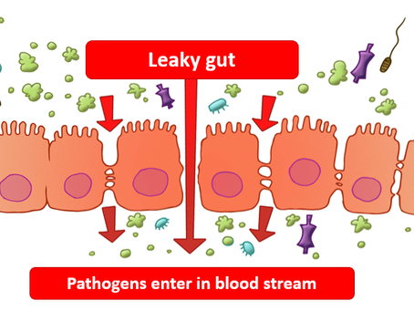 Is Your Leaky Gut Causing You to Hate Your Favourite Foods?
