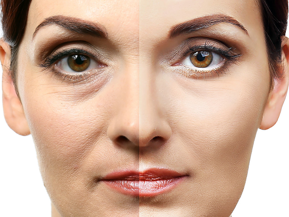 Moringa Oil Before and After Photo