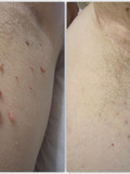skin tag removal under arm, Arundel west sussex