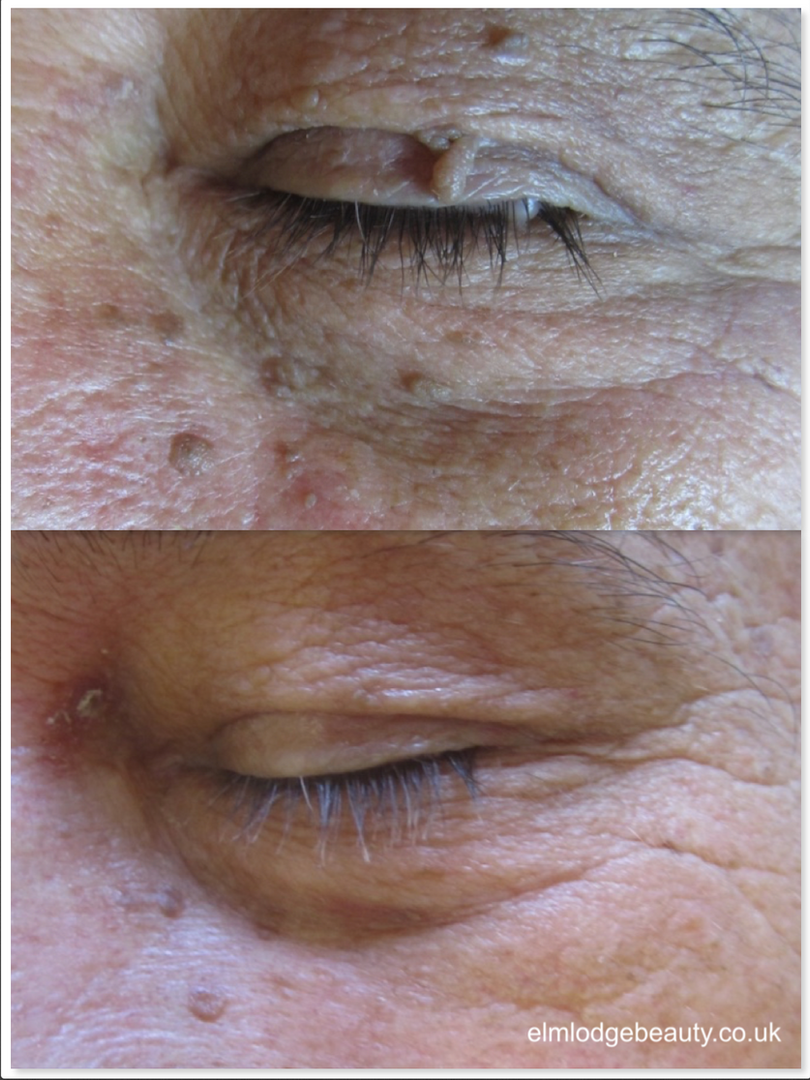 Skin tag removal near eye, Elm Lodge Beauty Studio, near Chichester, West Sussex