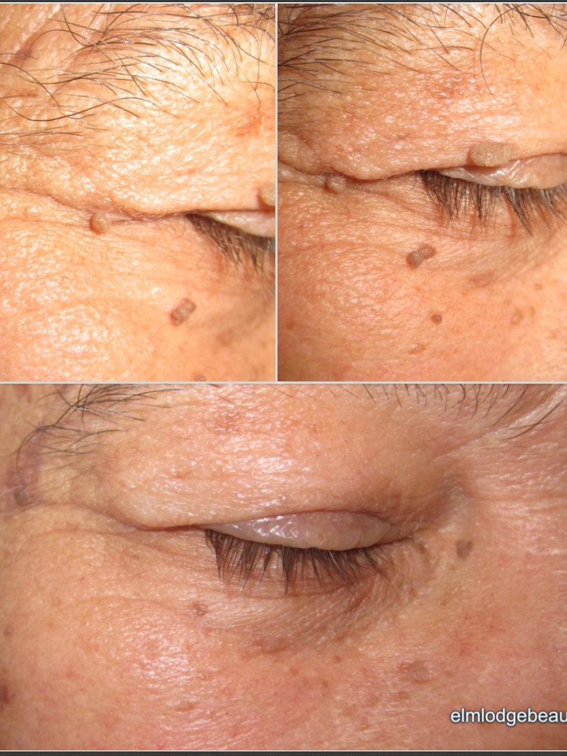 Skin tag removal near eye, Chichester, West Sussex