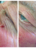 Skin tag removal near eye,  Elm Lodge Beaut Studio, Barnham, West Sussex near Chichester, West Sussex