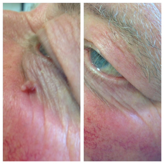 Skin tag removal near eye,  Elm Lodge Beaut Studio, Barnham, West Sussex near Chichester, West Sussex